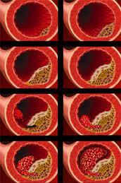 Las enfermedades cardiovasculares se gestan en lainfancia