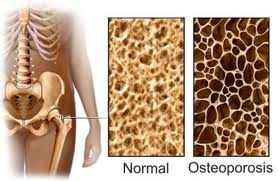Osteoporo