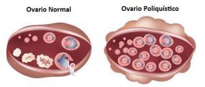 Ovario-poliquístico_470