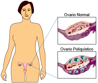PCOS Ovario Poliquistico