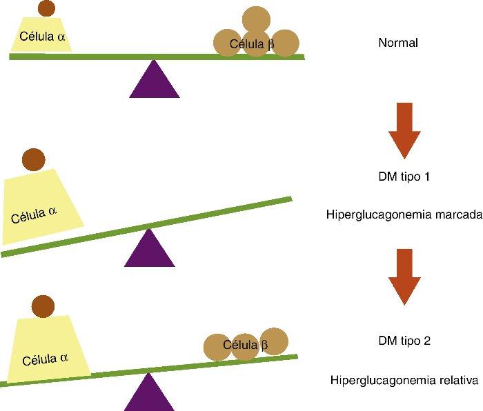 Armario Limpieza ~ Diabetes tipo 2, la más común u2013 Dr MiguelÁngel Guagnelli Mtz