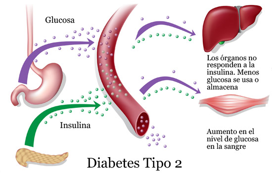 cómo se desarrolla el tesauro de diabetes tipo 2