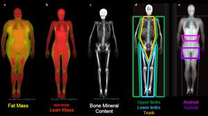 Body segments dxa