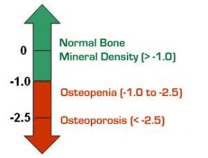 wpid-osteopeniagraph.jpg