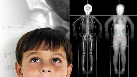 Conocer la composición corporal por medio de laDensitometría