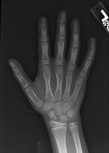 Bone-age-011