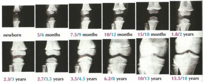 La maduración de los cartílagos de crecimiento tienen relación con la pubertad y con la edad a la que se deja de crecer. En niñas es a una edad ósea de 15 años.